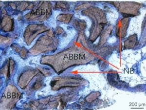 Human Histologic Evaluation of Anorganic Bovine Bone Mineral Combined with Recombinant Human Platelet-Derived Growth Factor BB in Maxillary Sinus Augmentation: Case Series Study
