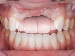 Prosthetic Gingival Reconstruction in the Fixed Partial Restoration - Part 2: Diagnosis and Treatment Planning