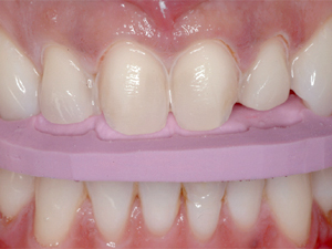Conservative Aesthetic Enhancement of the Maxillary Anterior Using Porcelain Laminate Veneers