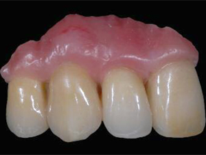Minimally Invasive Reconstruction in Implant Therapy - The Prosthetic Gingival Restoration