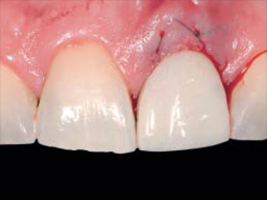 Peri-Implant Tissue Response Following Connective Tissue and Bone Grafting in Conjunction with Immediate Single-Tooth Replacement in the Esthetic Zone