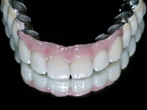 Implant Supported Overdentures - Design Clinical Techniques and Tooth Selection