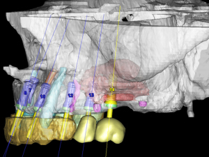 Designing Periodontal Surgical Procedures in the 4th Dimension: Advantages of CBCT Planning