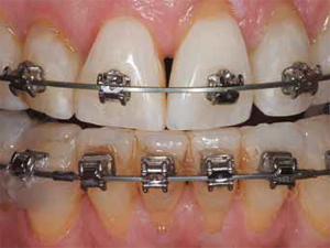 Orthodontic Caries Control and Bleaching