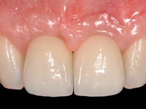 Peri-implant Soft Tissue Conditioning with Provisional Restorations in the Esthetic Zone: The Dynamic Compression Technique