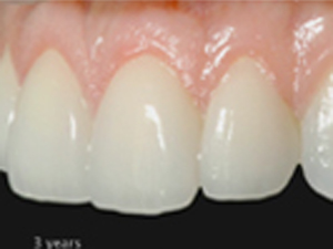 Choosing Anterior Ceramics – The Concept of Restorative Volume - Part 1 of 2