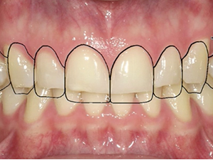Smile Design and The Bonded Functional Esthetic Prototype (BFEP)