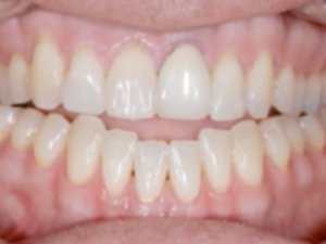 Breaking the Bruxism Habit - Treatment Options & Solutions