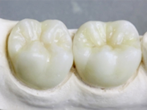 Bonding and Cementing Zirconia Restorations: Current Clinical and Scientific Information