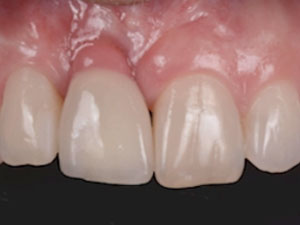 Tissue Responsible Dentistry - Part 1: Contemporary Concepts in Hard & Soft Tissue Management in Implant Dentistry