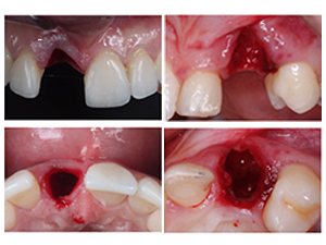 Esthetic Tissue Reconstruction Around Implants - Part 2 of 2