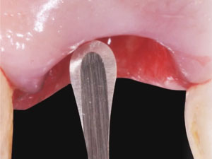 Surgical Veneer Grafting Protocol: Step-by-Step Utilization in the Esthetic Zone