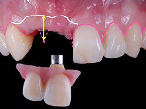 Treating Two Adjacent Missing Teeth in the Esthetic Zone - Part 1: The Pink Hybrid Restoration & the Unilateral Versus Bilateral Defect Concept