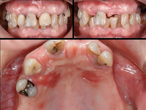 Microsurgical Soft Tissue Reconstruction for Teeth & Implants - Part 1 of 2