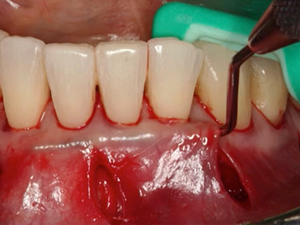 Fibrin Assisted Soft Tissue Promotion (FASTP) - A New Perspective in Periodontal Plastic Surgery