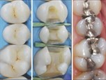 Clinical Excellence in Operative Dentistry: Not Only A Question of Color & Fancy Trends