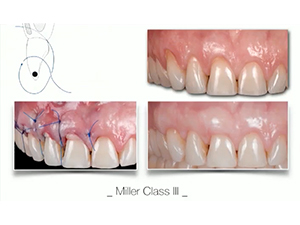 Microsurgical Soft Tissue Reconstruction for Teeth & Implants - Part 2 of 2