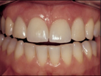 Flapless Immediate Adjacent Implants and Provisionalisation
