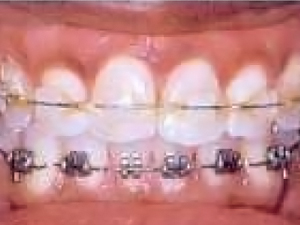 Orthodontics vs Restorative Materials