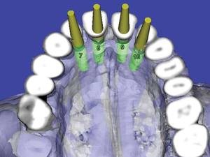 CT-Derived Model-Based Surgery for Immediate Loading of Maxillary Anterior Implants