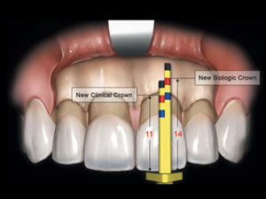 A Biometric Approach To Aesthetic Crown Lengthening: Part 1 - Midfacial Considerations