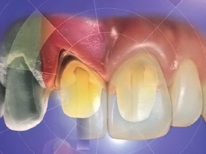 Replacement of a Mutilated Maxillary Incisor With a Single Implant Restoration: A Staged Implant