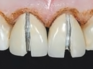 Laser Assisted Crown Lengthening