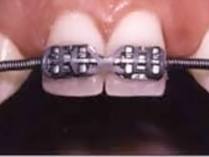 Maxillary Lateral Incisor Implants: The Orthodontic Perspective