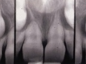 Restoration and Retention of Maxillary Anteriors with Severe Root Resorption