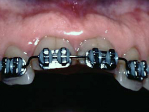 Using Orthodontic Intrusion of Abraded Incisors to Facilitate Restoration
