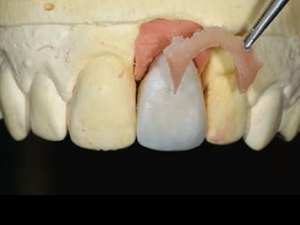 Prosthetic Gingival Reconstruction in the Fixed Partial Restorations