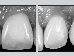 Papilla Proportions in the Maxillary Anterior Dentition
