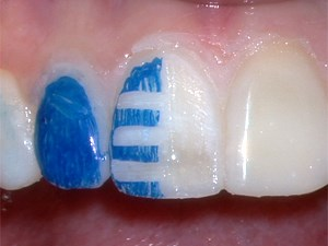 Trial Smile and Guided Veneer Preparation in Esthetic Therapy - Part 3