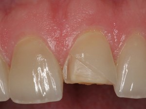 Esthetic Maintenance and Repair of Ceramic Restorations - Part 1