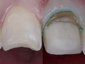 Esthetic Maintenance and Repair of Ceramic Restorations - Part 2