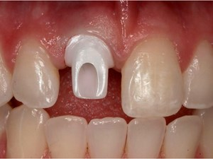 Biologic and Surgical Strategies for Achieving Implant Esthetics – Part 1