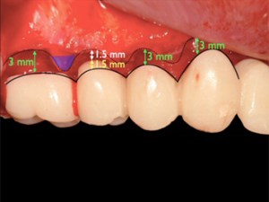 Biologic and Surgical Strategies for Achieving Implant Esthetics – Part 2