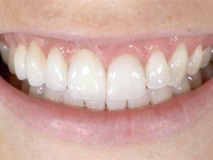 Prosthetic Gingival Reconstruction in a Fixed Partial Restoration - Part 1: Introduction to Artificial Gingiva as an Alternative Therapy
