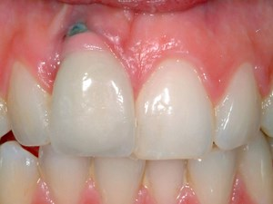 Keys to Optimizing Soft Tissue Esthetics in Implant Therapy - Part 1