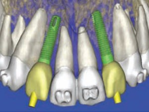 Defining New Paradigms for Assessment of Implant Receptor Sites