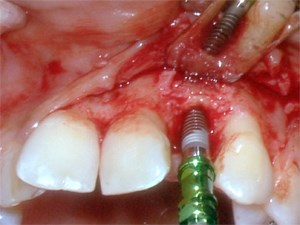 Implant Therapy and Esthetic Considerations - Staged Implant Placement with Additional GBR  - Part 2 of 6