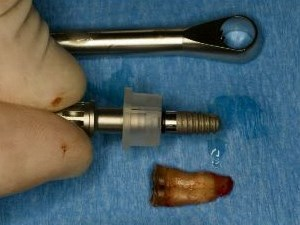 Implant After Extraction