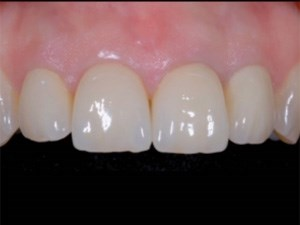 Zirconia vs Metal Substructures in Restorative Dentistry