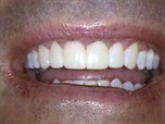 Transitional Bonding - Major Esthetic & Occlusal Changes in One Visit Using Composite - Part 5 of 5