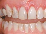 Treatment of Excessive Gingival Display and Anterior Overeruption: Rehabilitation and Restoration