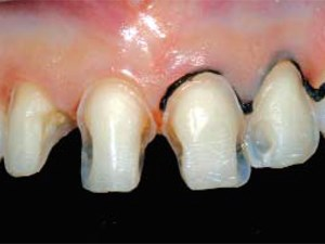 Predictable and Precise Tooth Preparation Techniques For PLVs in Complex Cases