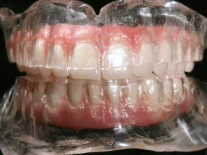 Guided, Flapless, Immediate Load Implant Dentistry - Part 1