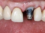 Managing Prosthetic Components for Predictable Implant Aesthetics - part 4 of 4