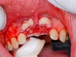 Functional Gingival Grafts in Anterior Implant Therapy - Part 2 of 2