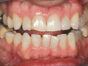 Utilising a restorative approach to correct an adult skeletal class III malocclusion